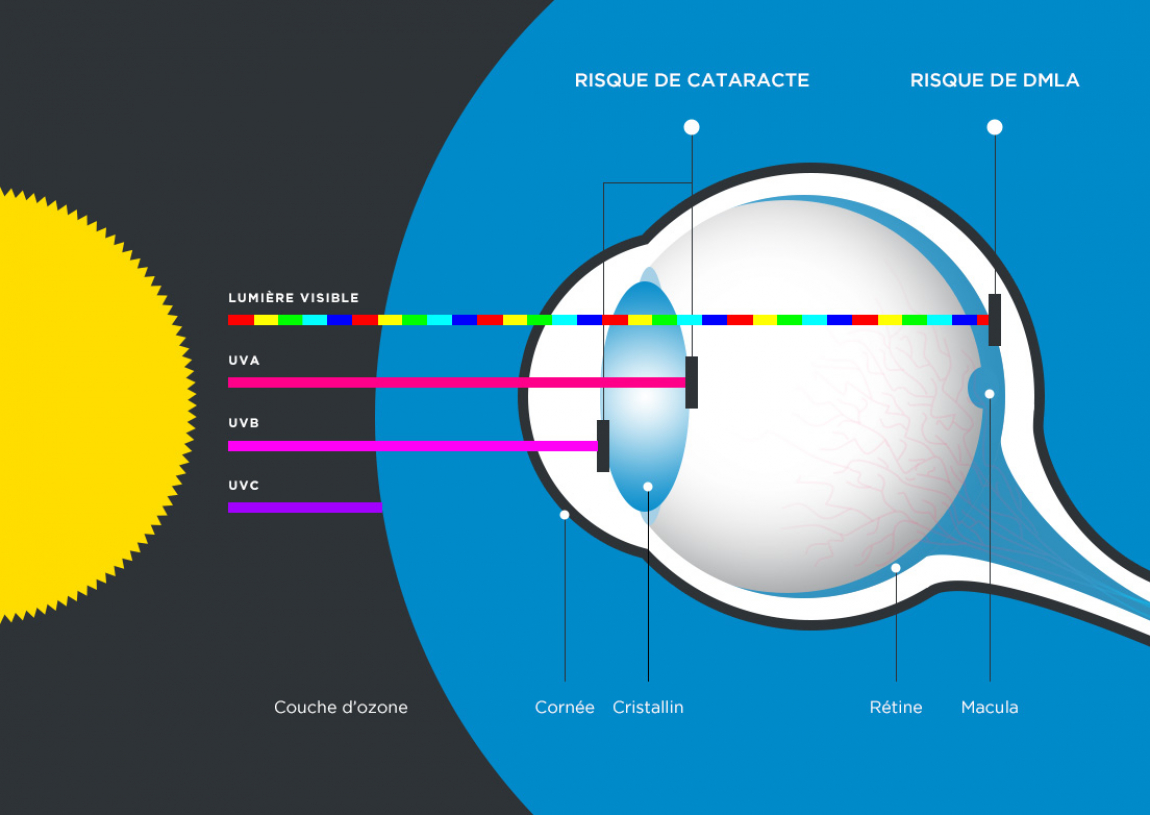 Les dangers de la lumière sur l'oeil