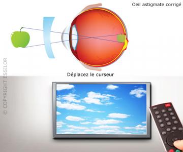 Vision d'un astigmate corrigé avec un verre de lunettetorique
