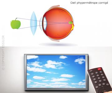 Vision d'un hypermétrope corrigé par un verre de lunettes